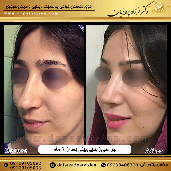 عمل جراحی زیبایی بینی استخوانی