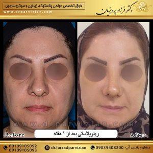 عمل جراحی زیبایی بینی گوشتی