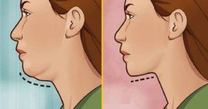 جراحی زیبایی فک و چانه genioplasty جلو کشیدن چانه