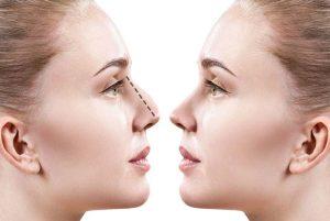 عمل جراحی بینی با لیزر یک دروغ تبلیغاتی