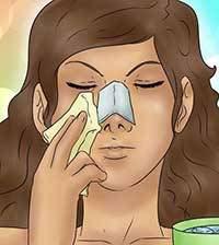 مراقبتهای جراحی بینی