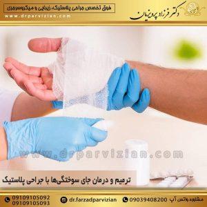 ترمیم و درمان جای سوختگیها با جراحی پلاستیک