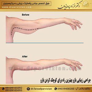 جراحی زیبایی بازو بهترین راه برای کوچک کردن بازو