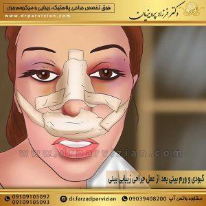 کبودی و ورم بینی بعد از عمل جراحی زیبایی بینی