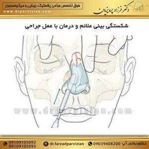 شکستگی بینی علائم و درمان با عمل جراحی
