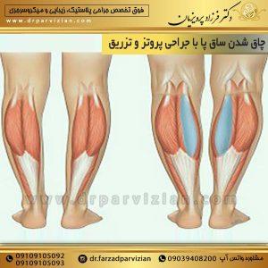 چاق شدن ساق پا با جراحی پروتز و تزریق