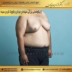 ژنیکوماستی بزرگی سینه در مردان و کوچک کردن سینه