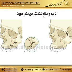 ترمیم و اصلاح شکستگی های فک و صورت