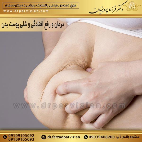 درمان و رفع افتادگی و شلی پوست بدن