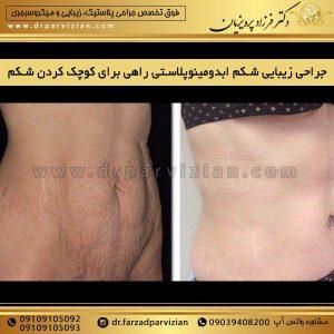 جراحی زیبایی شکم ابدومینوپلاستی راهی برای کوچک کردن شکم