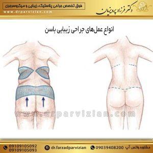 انواع عملهای جراحی زیبایی باسن