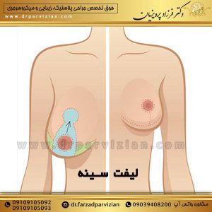 درمان افتادگی سینه و سفت کردن سینه با لیفت و بالاکشیدن آن