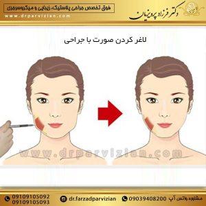 لاغر کردن صورت با جراحی