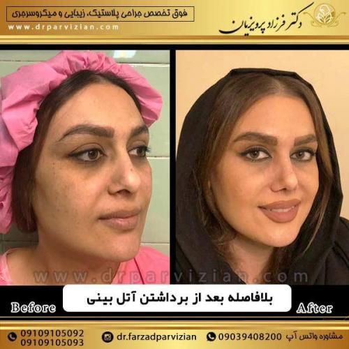 جراحی-بینی-14