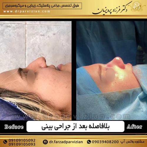 جراحی-بینی-22