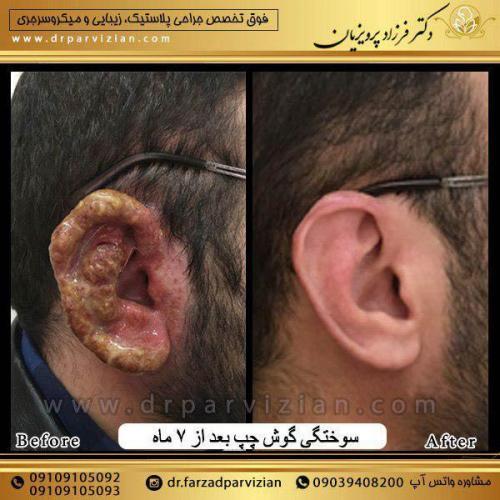 جراحی-پلاستیک-و-سوختگی-گوش-1