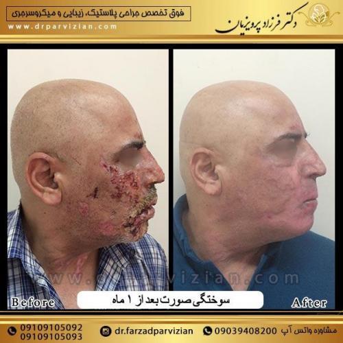 جراحی-پلاسستیک-و-سوختگی-صورت-11