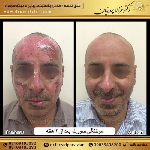 جراحی-پلاسستیک-و-سوختگی-صورت-14