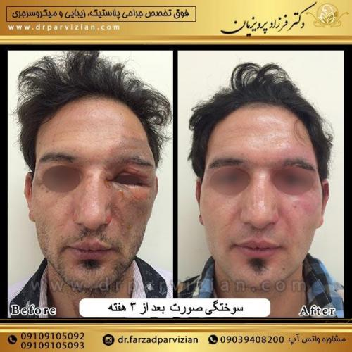 جراحی-پلاسستیک-و-سوختگی-صورت-9
