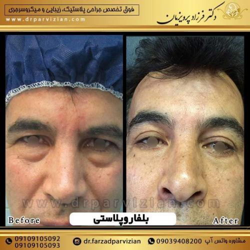 جراحی-پلک-2